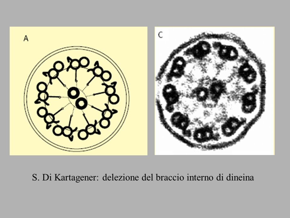 S. Di Kartagener: delezione del braccio interno di dineina