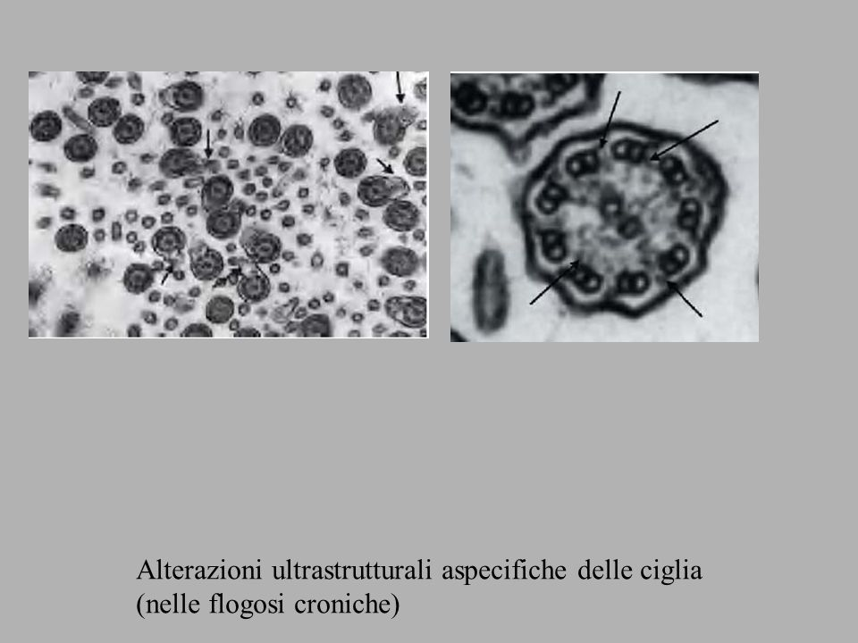 Alterazioni ultrastrutturali aspecifiche delle ciglia