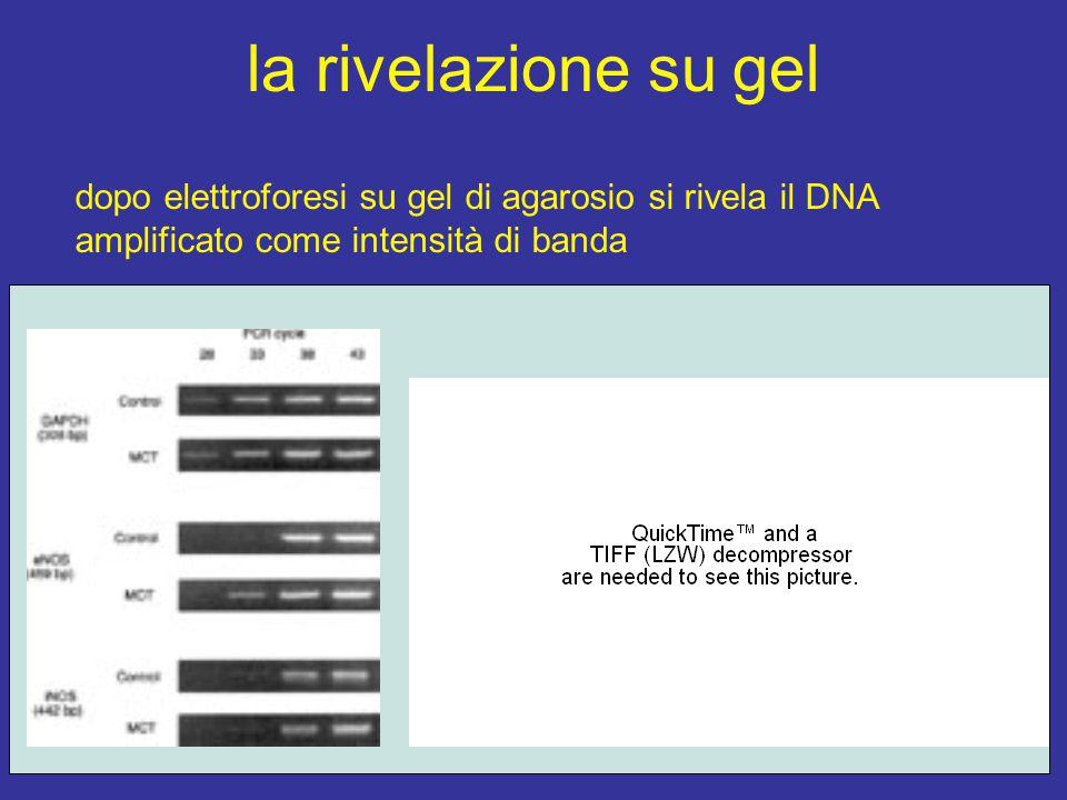 la rivelazione su gel dopo elettroforesi su gel di agarosio si rivela il DNA amplificato come intensità di banda.