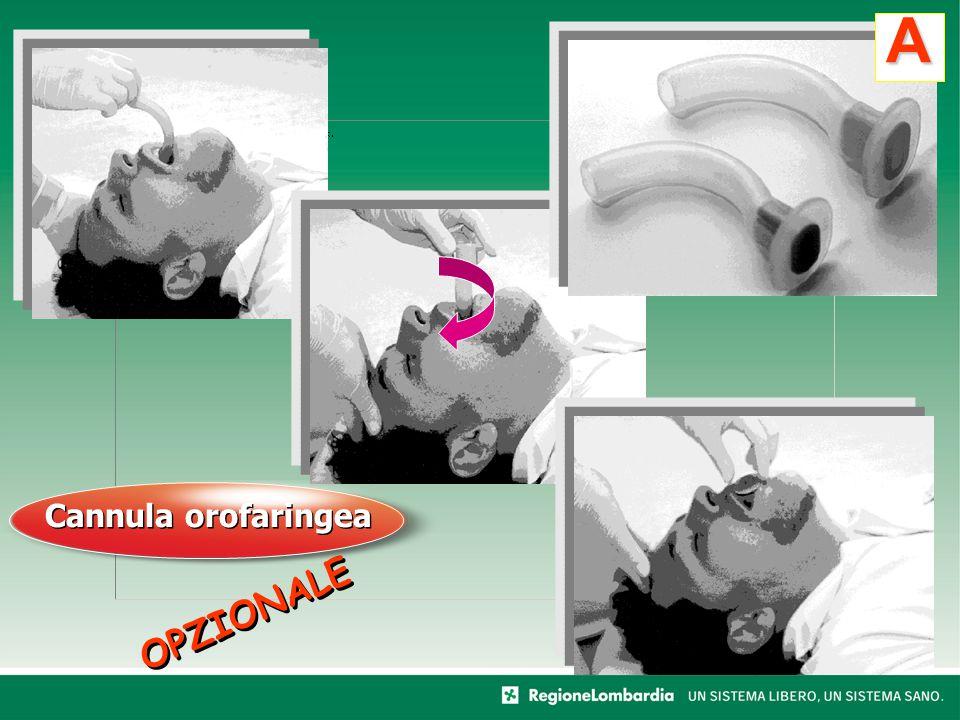 A Cannula orofaringea OPZIONALE