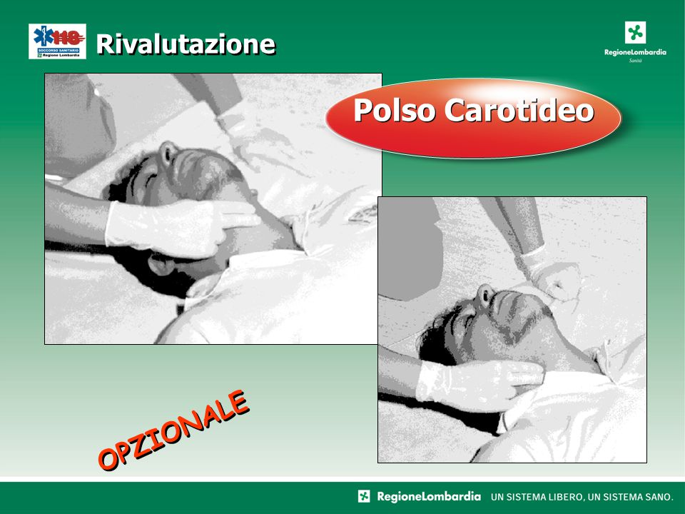 Rivalutazione Polso Carotideo OPZIONALE
