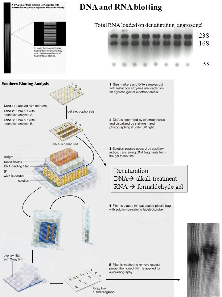 DNA and RNA blotting 23S 16S 5S Denaturation DNA alkali treatment