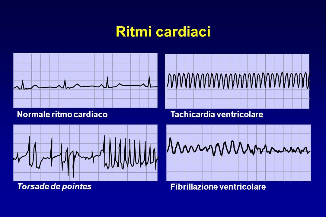 Ritmi cardiaci Normale ritmo cardiaco Tachicardia ventricolare