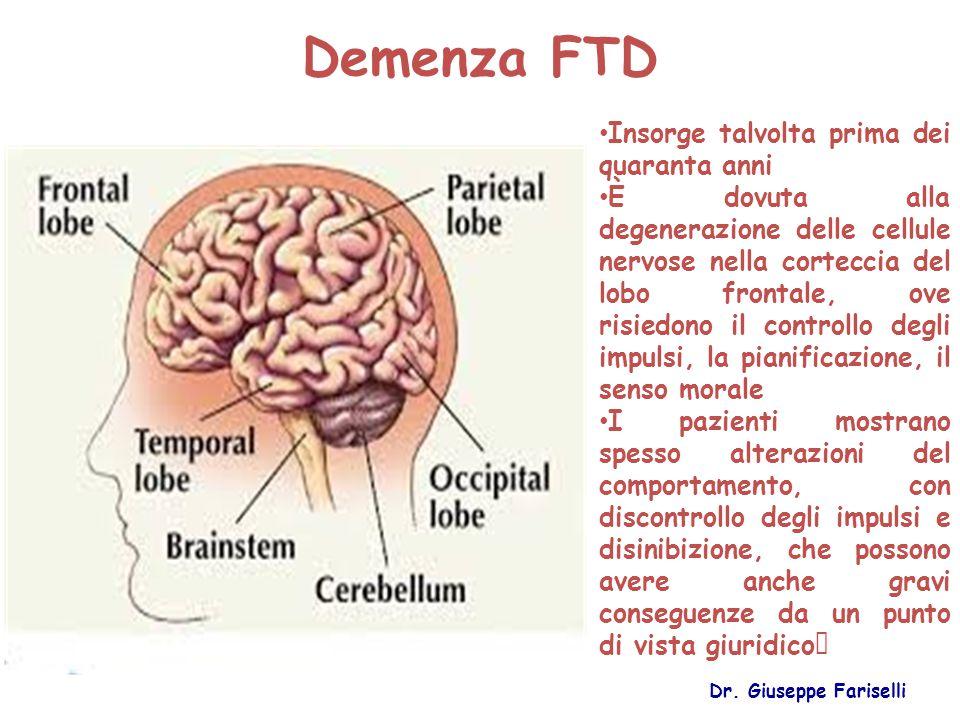 Demenza FTD Insorge talvolta prima dei quaranta anni