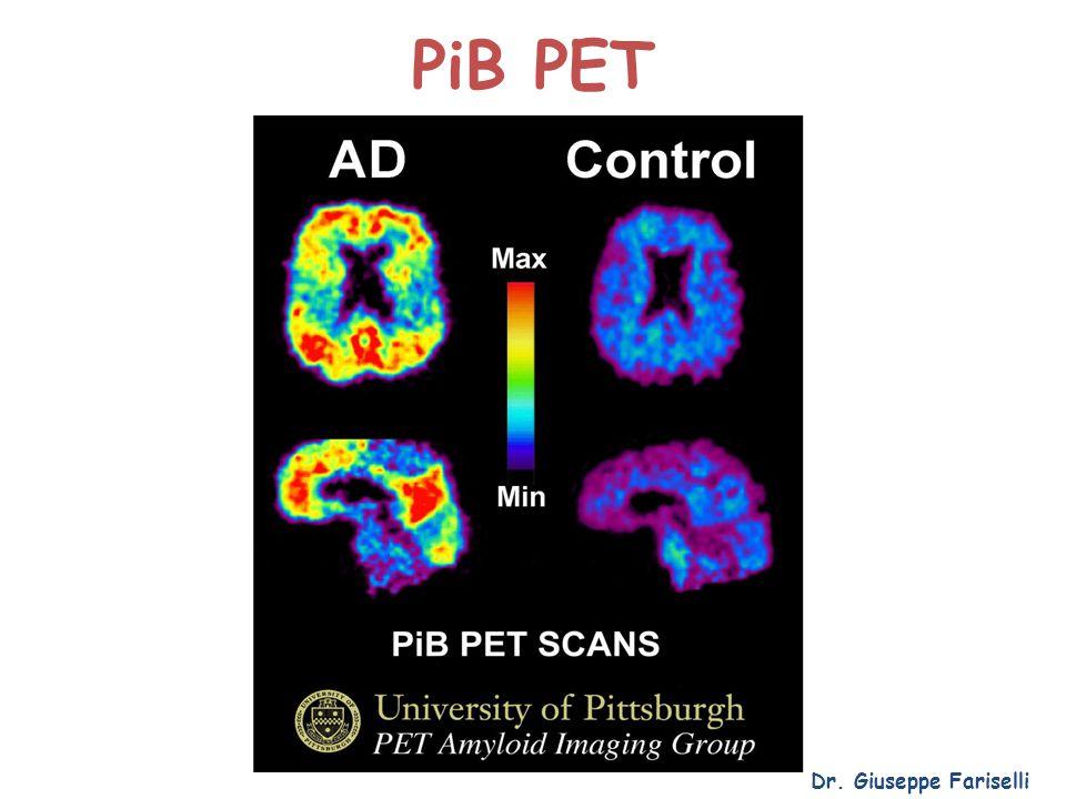 PiB PET Dr. Giuseppe Fariselli