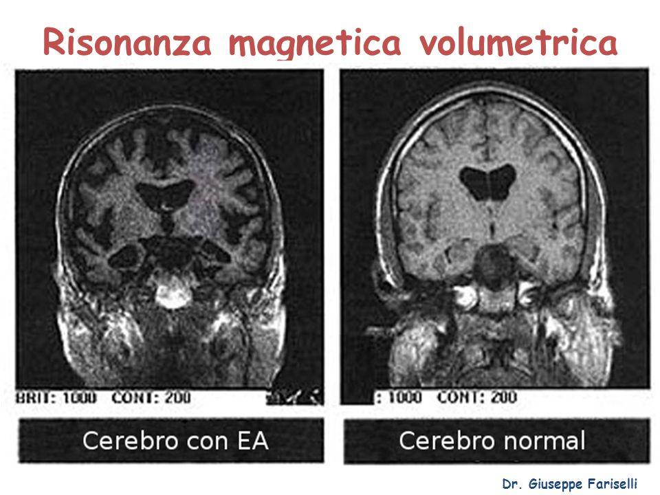 Risonanza magnetica volumetrica