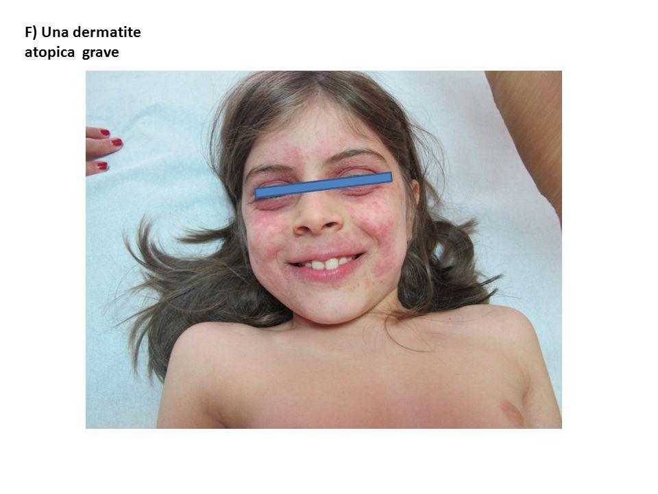 F) Una dermatite atopica grave