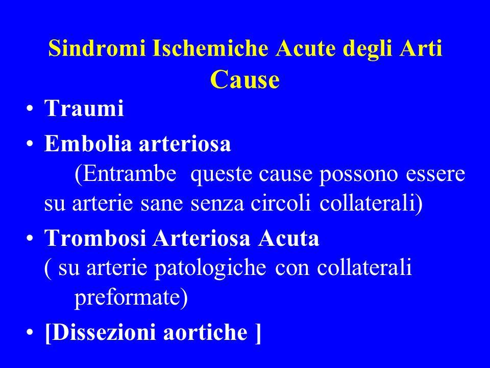 Sindromi Ischemiche Acute degli Arti Cause