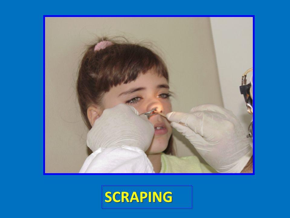 Il prelievo può essere eseguito mediante varie tecniche ma quella solitamente consigliata e la tecnica dello scraping