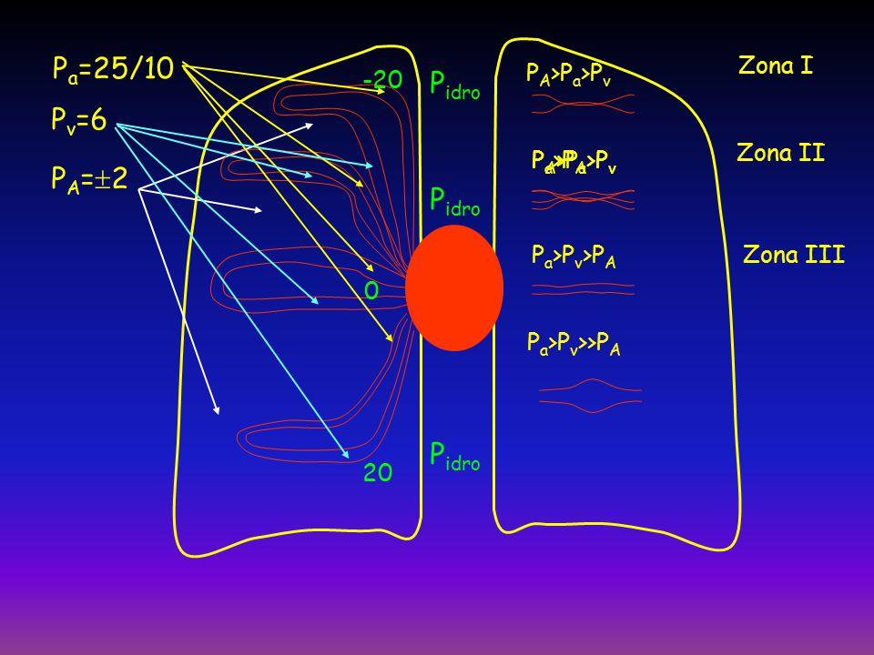 Pa=25/10 Pv=6 PA=2 Pidro Zona I PA>Pa>Pv -20 20 Zona II
