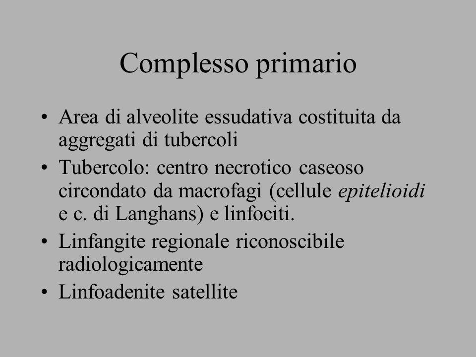 Complesso primario Area di alveolite essudativa costituita da aggregati di tubercoli.