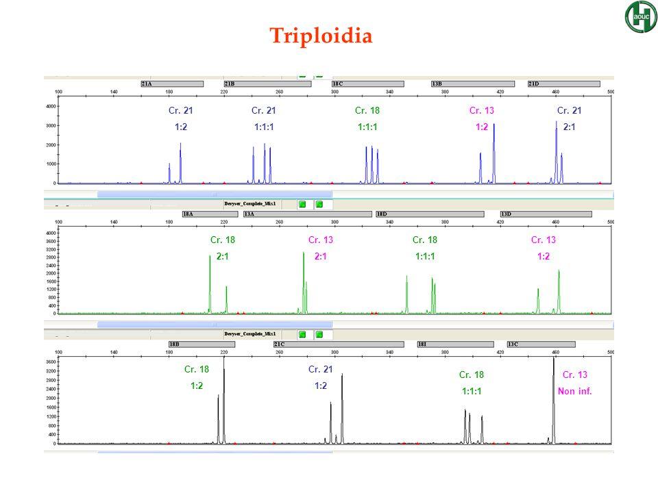 Triploidia Cr. 21 1:2 1:1:1 Cr. 18 Cr. 13 2:1 Non inf.