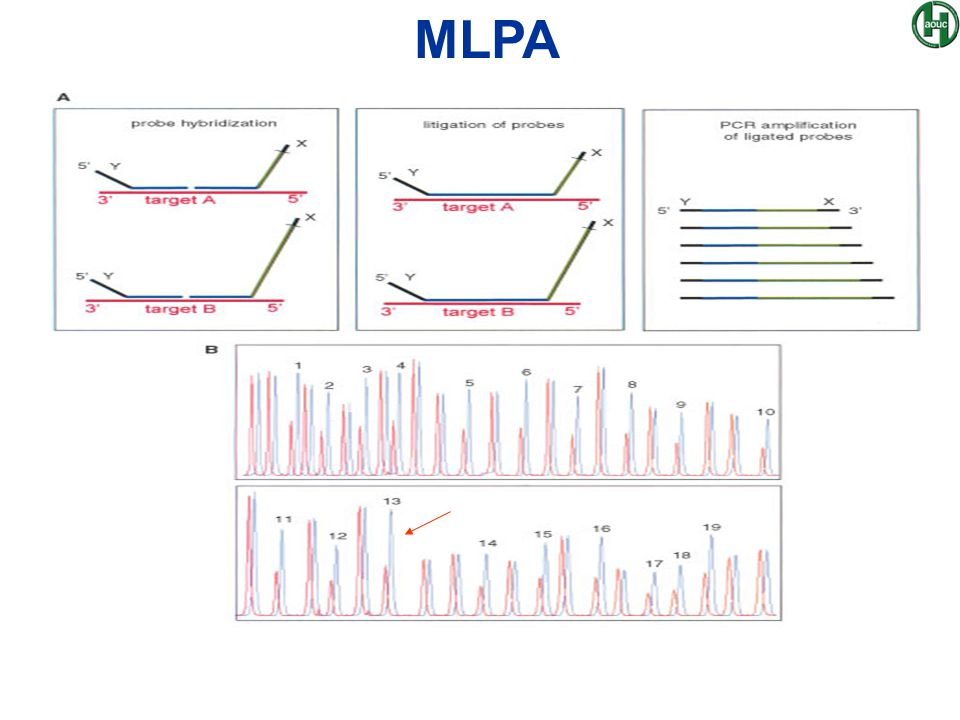 MLPA In letterarutura il primo lavoro per la ricerca rapida di aneuploidie con MLPA risale al 2002-2003.