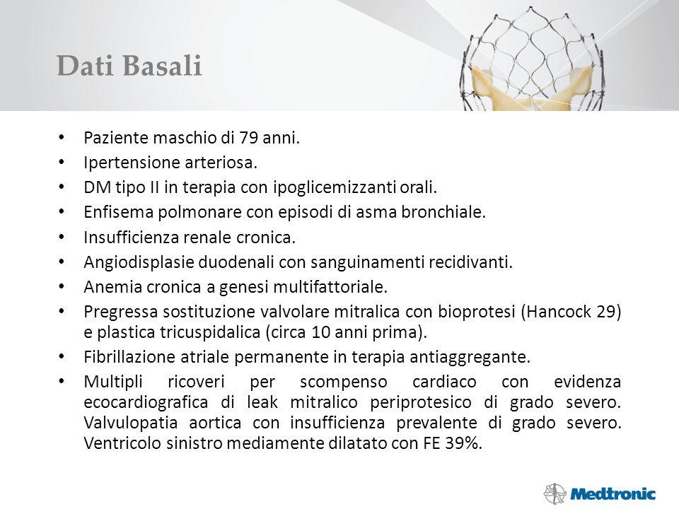 Dati Basali Paziente maschio di 79 anni. Ipertensione arteriosa.
