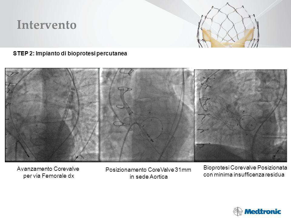 Intervento STEP 2: Impianto di bioprotesi percutanea