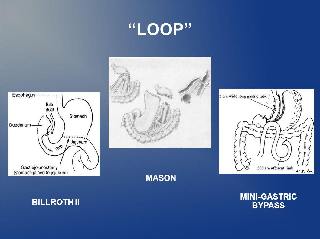 LOOP MASON BILLROTH II MINI-GASTRIC BYPASS