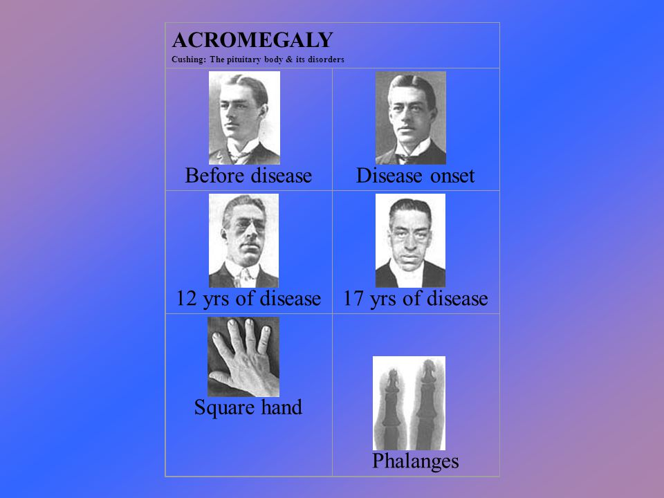 ACROMEGALY Cushing: The pituitary body & its disorders