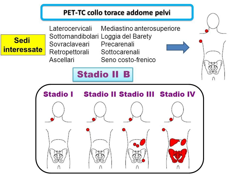 PET-TC collo torace addome pelvi
