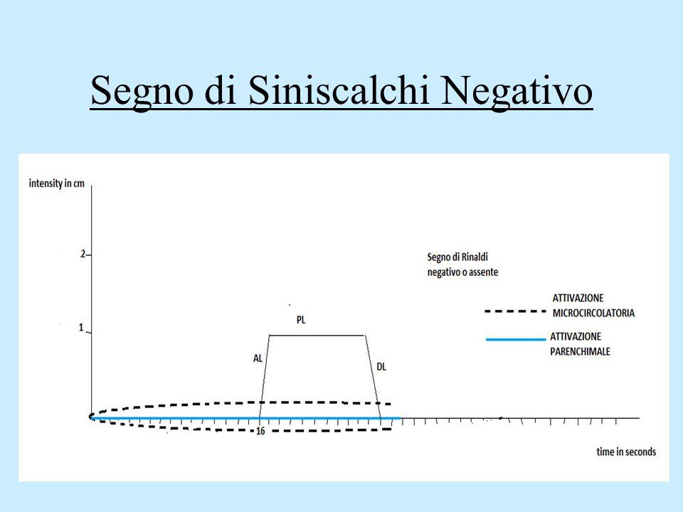 Segno di Siniscalchi Negativo