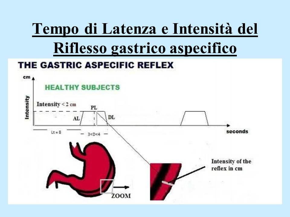 Tempo di Latenza e Intensità del Riflesso gastrico aspecifico
