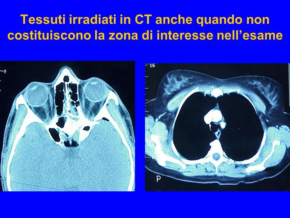 Tessuti irradiati in CT anche quando non costituiscono la zona di interesse nell'esame