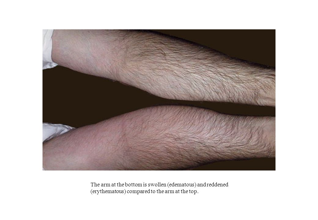 The arm at the bottom is swollen (edematous) and reddened (erythematous) compared to the arm at the top.