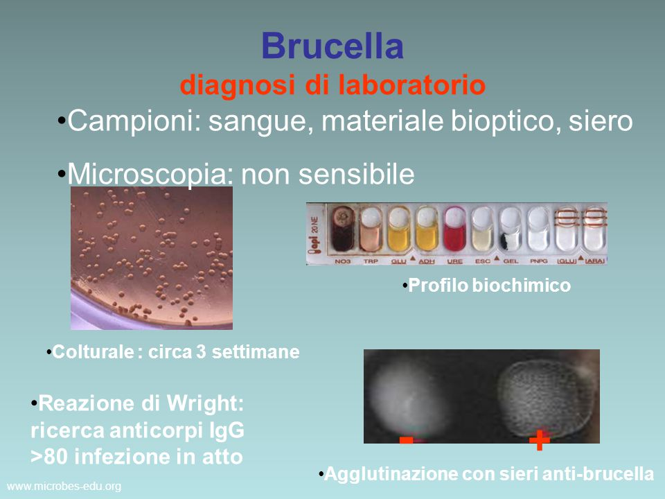 Brucella diagnosi di laboratorio
