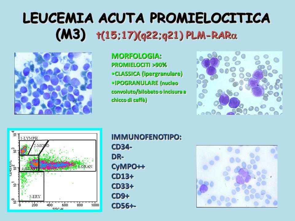 LEUCEMIA ACUTA PROMIELOCITICA (M3) t(15;17)(q22;q21) PLM-RAR