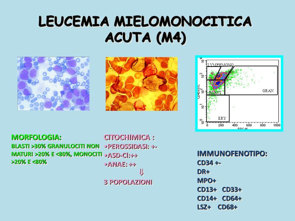 LEUCEMIA MIELOMONOCITICA ACUTA (M4)