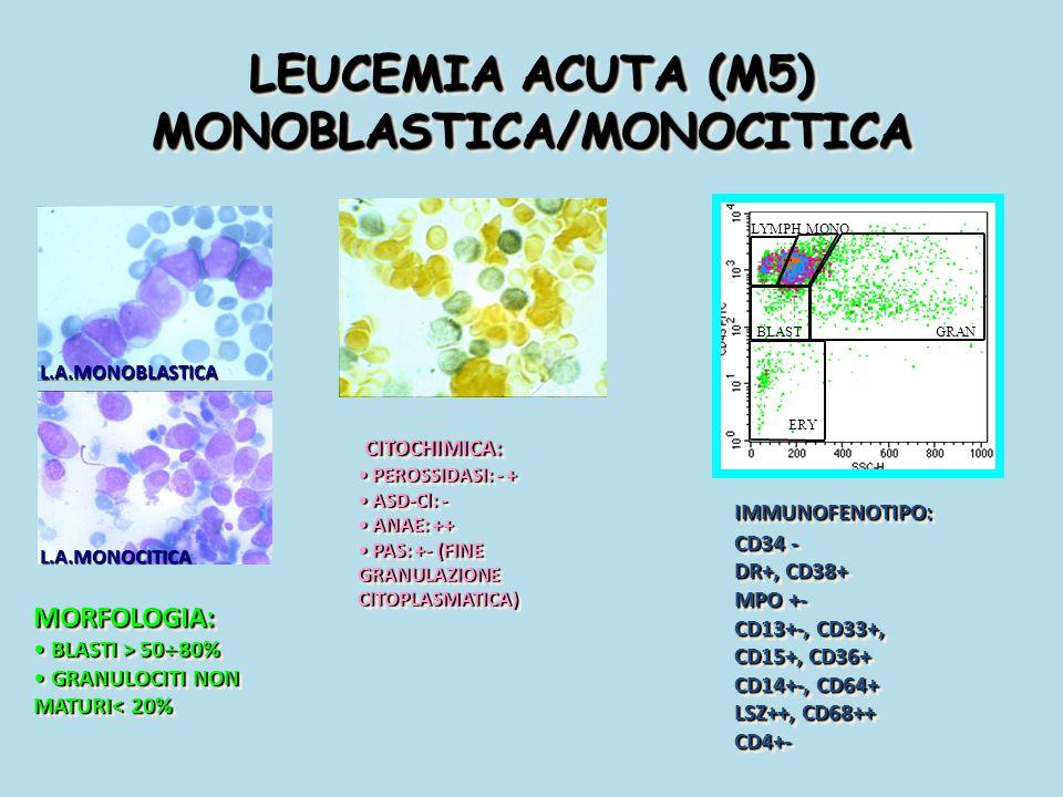 LEUCEMIA ACUTA (M5) MONOBLASTICA/MONOCITICA