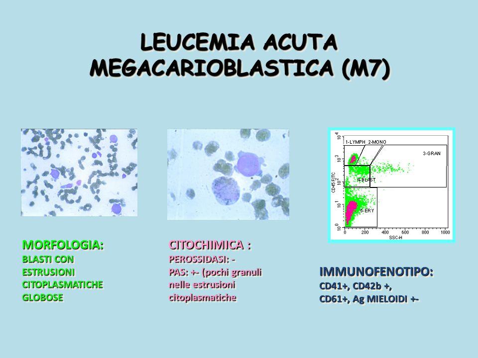 LEUCEMIA ACUTA MEGACARIOBLASTICA (M7)