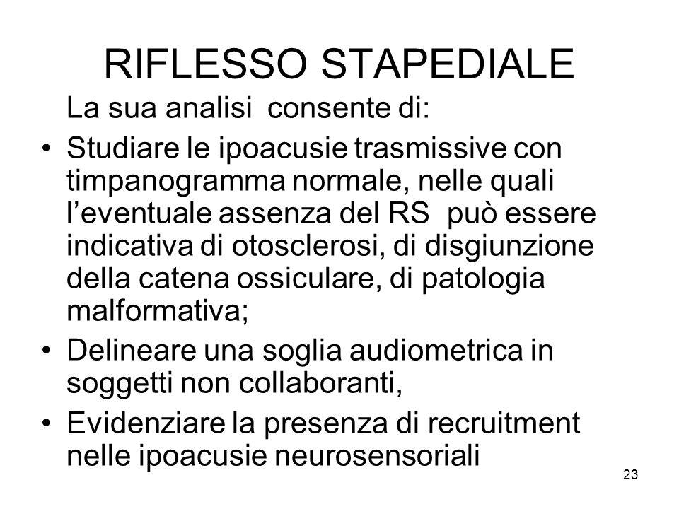 RIFLESSO STAPEDIALE La sua analisi consente di:
