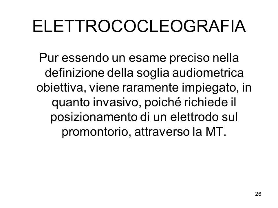 ELETTROCOCLEOGRAFIA