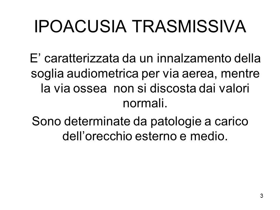 IPOACUSIA TRASMISSIVA