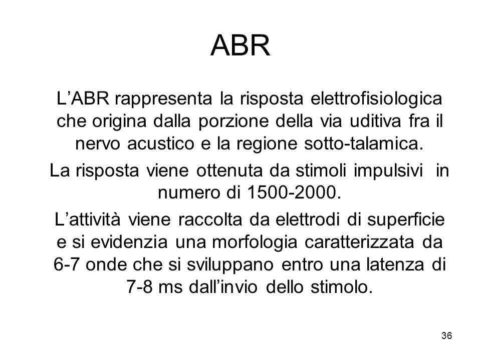 ABR L'ABR rappresenta la risposta elettrofisiologica che origina dalla porzione della via uditiva fra il nervo acustico e la regione sotto-talamica.