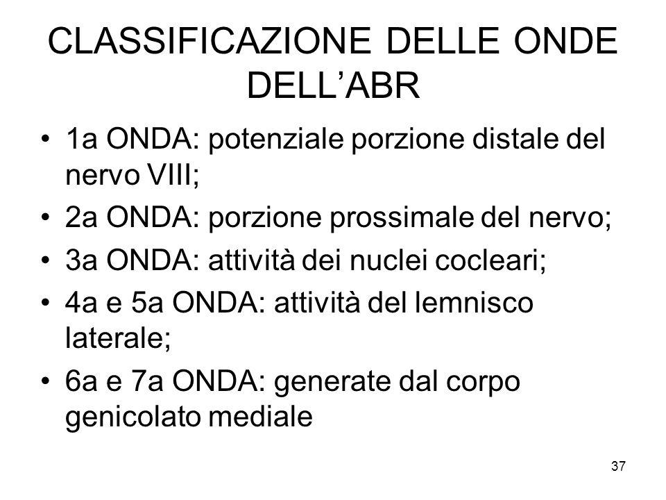 CLASSIFICAZIONE DELLE ONDE DELL'ABR