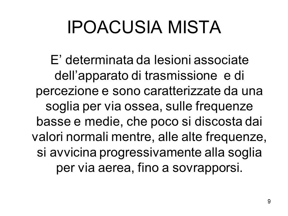 IPOACUSIA MISTA