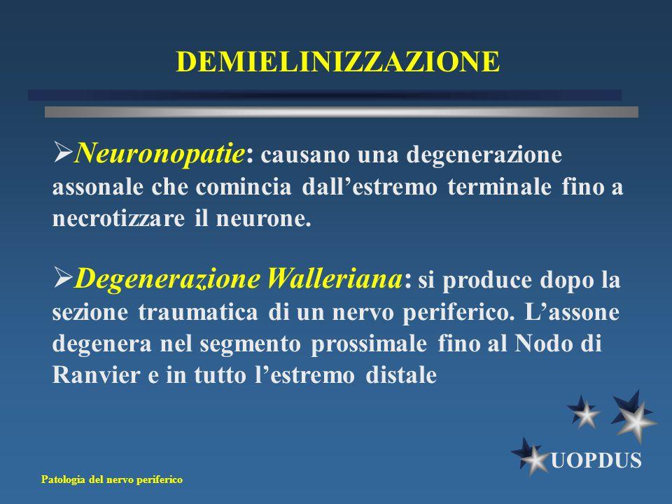 DEMIELINIZZAZIONE Neuronopatie: causano una degenerazione assonale che comincia dall'estremo terminale fino a necrotizzare il neurone.