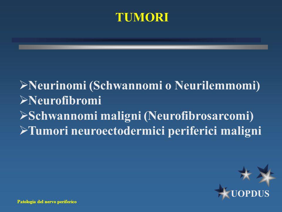 TUMORI Neurinomi (Schwannomi o Neurilemmomi) Neurofibromi. Schwannomi maligni (Neurofibrosarcomi)