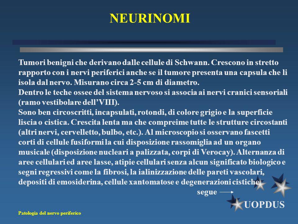 NEURINOMI