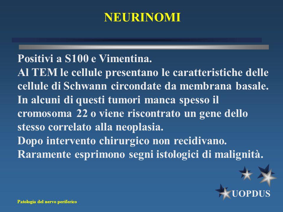 NEURINOMI Positivi a S100 e Vimentina.