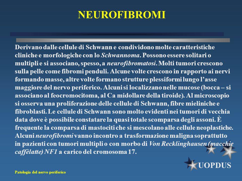 NEUROFIBROMI