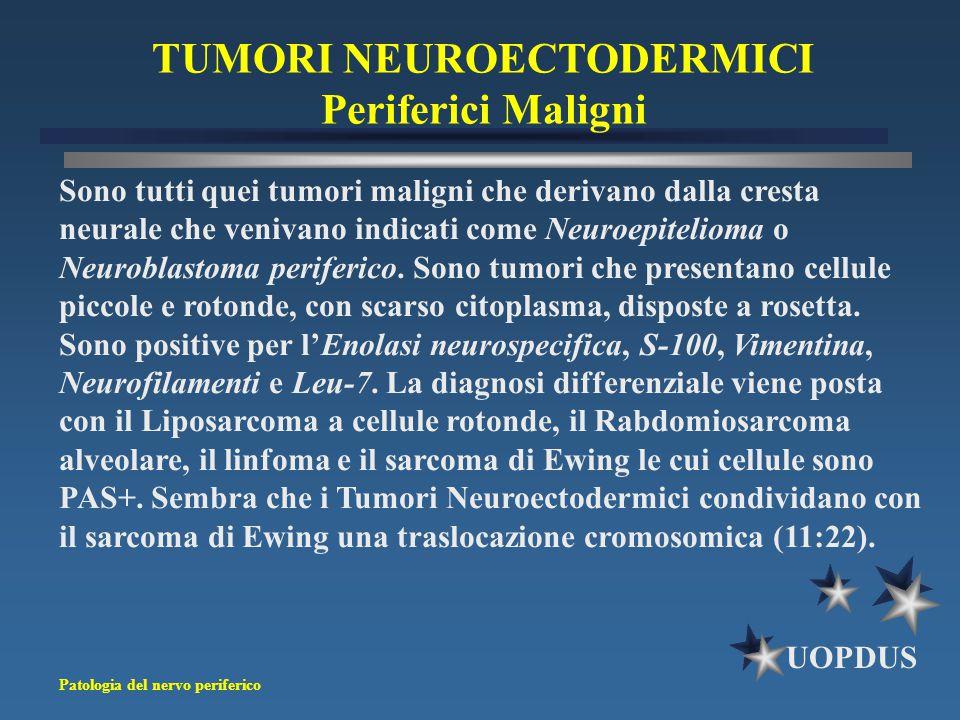 TUMORI NEUROECTODERMICI