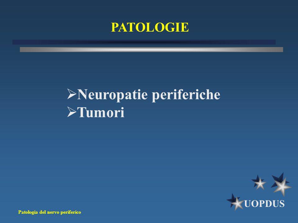 Neuropatie periferiche Tumori