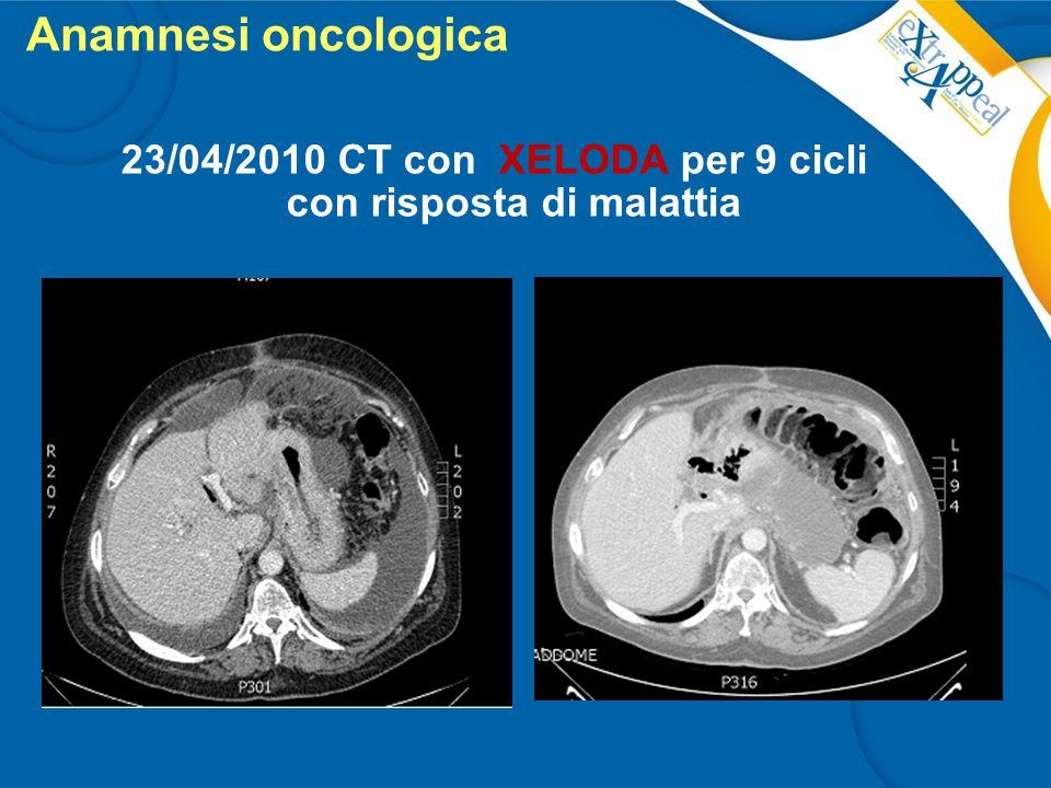 23/04/2010 CT con XELODA per 9 cicli con risposta di malattia