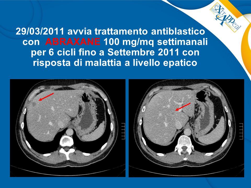 29/03/2011 avvia trattamento antiblastico con ABRAXANE 100 mg/mq settimanali per 6 cicli fino a Settembre 2011 con risposta di malattia a livello epatico