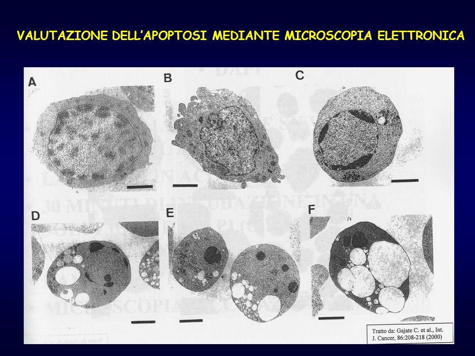 VALUTAZIONE DELL'APOPTOSI MEDIANTE MICROSCOPIA ELETTRONICA