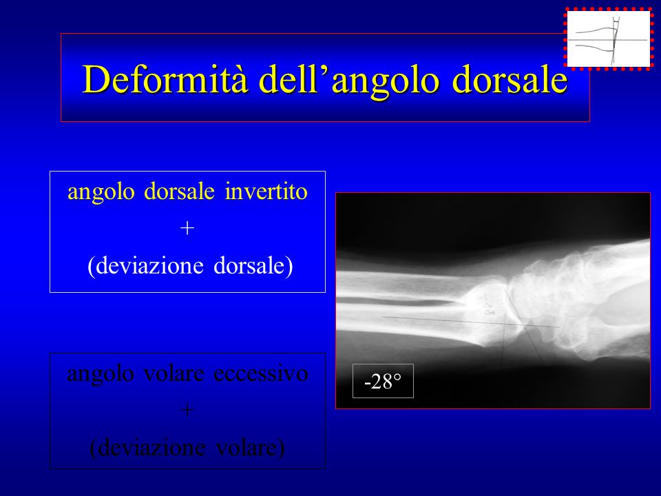 Deformità dell'angolo dorsale