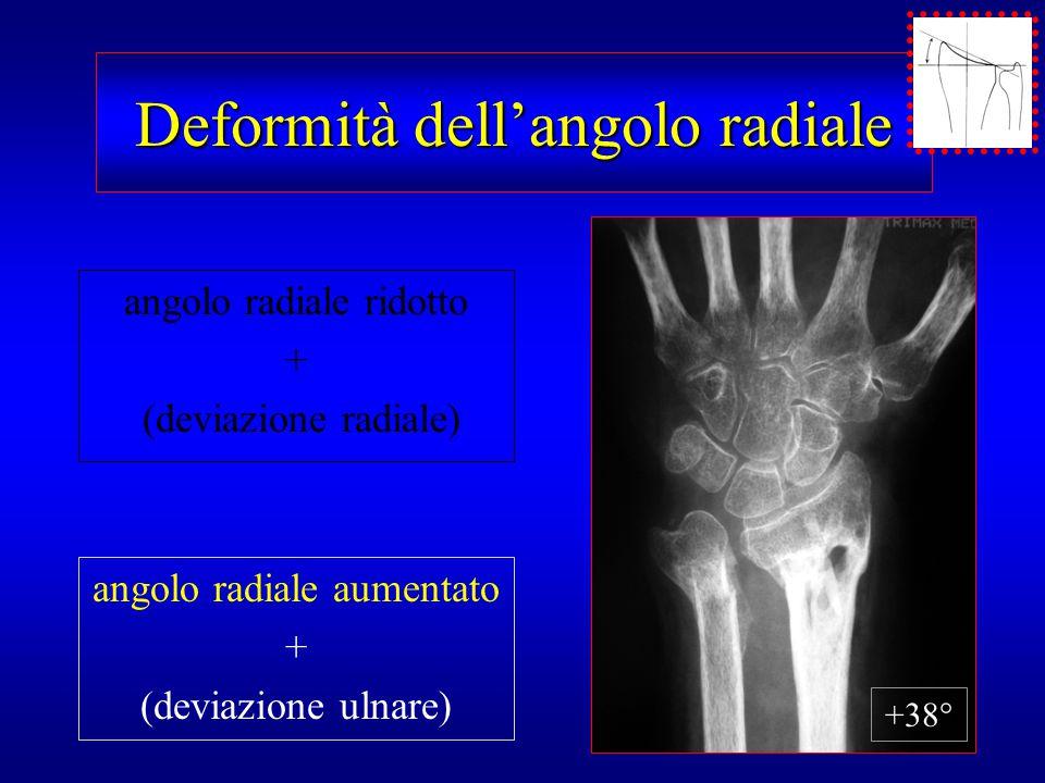 Deformità dell'angolo radiale