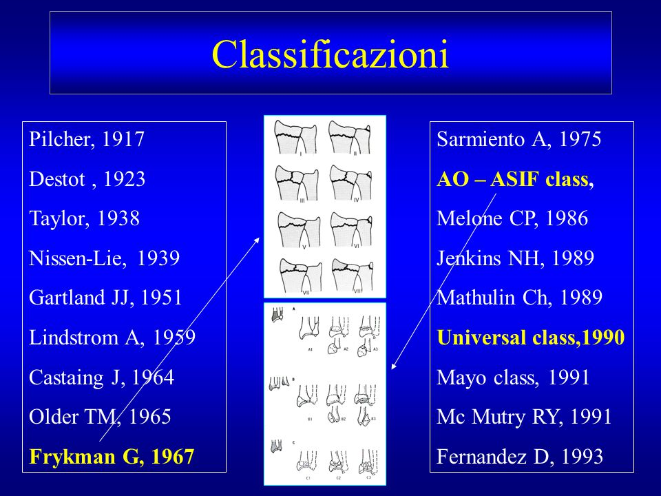 Classificazioni Pilcher, 1917 Destot , 1923 Taylor, 1938